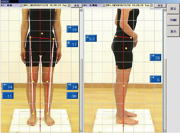 膝関節画像分析