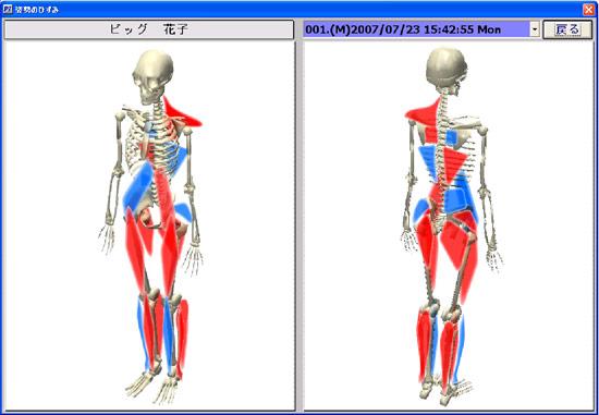 人体筋骨格モデルでのひずみ分布