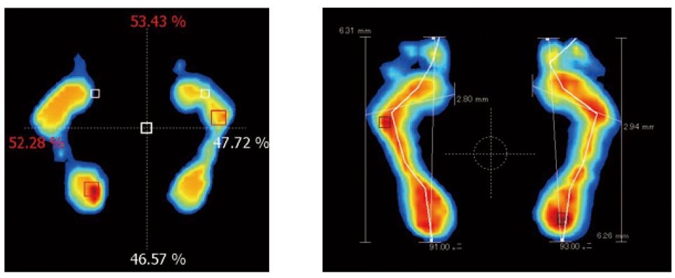 2種類の足圧分析